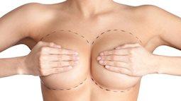 Thực hư nguy cơ bị ung thư máu sau khi đi nâng ngực