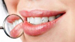 Đính đá lên răng: Phía sau nụ cười đẹp là hệ lụy nguy hiểm