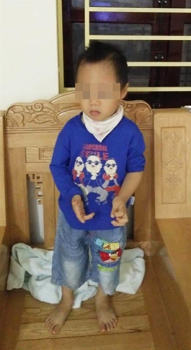 Bệnh viện Nhi Trung ương bị tố tắc trách khiến cháu bé teo não