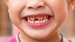 Có nên chủ động nhổ bỏ răng sữa của trẻ khi bị sâu?