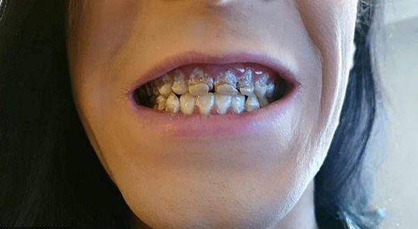 Mục răng vì nghiện nước tăng lực