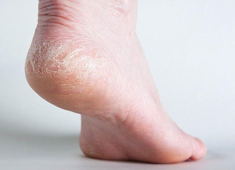 'Độc chiêu' trị gót chân nứt nẻ bằng nha đam và chanh