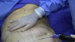 Bệnh viện Bạch Mai: Tiếp nhận thêm một ca tử vong do hút mỡ bụng