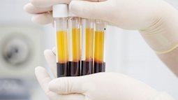 Nga phát triển thành công keo phẫu thuật bằng huyết tương của bệnh nhân
