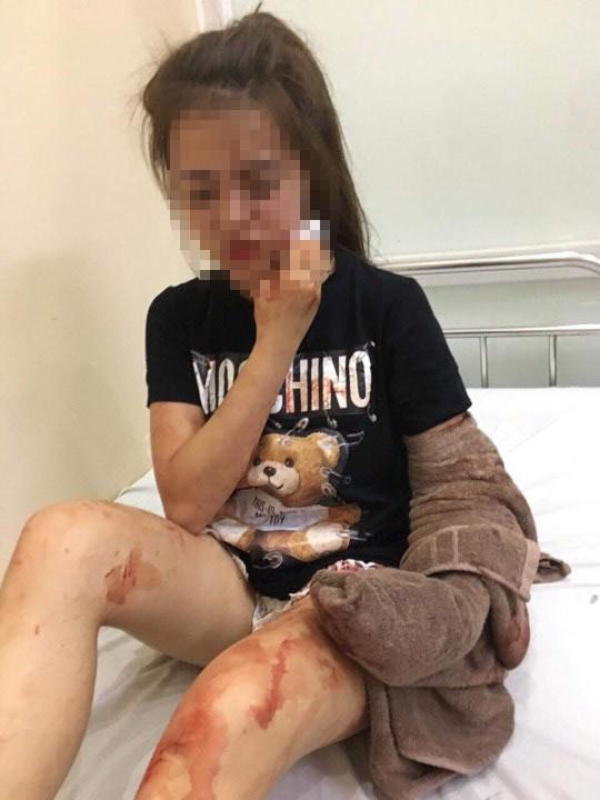 Nghe tin con gái rạch mặt người khác, mẹ ngã gục tại bệnh viện - Ảnh 2.