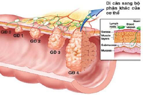 Từ sự ra đi của người mẫu Như Hương: Đừng chủ quan với những dấu hiệu cảnh báo sớm của ung thư dạ dày  - Ảnh 3.
