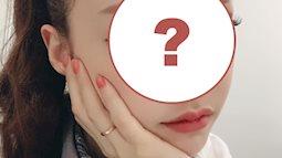 """Hiếm lắm mới có nữ idol đình đám Kpop công khai việc """"dao kéo"""", lại còn khoe kết quả lên Instagram"""
