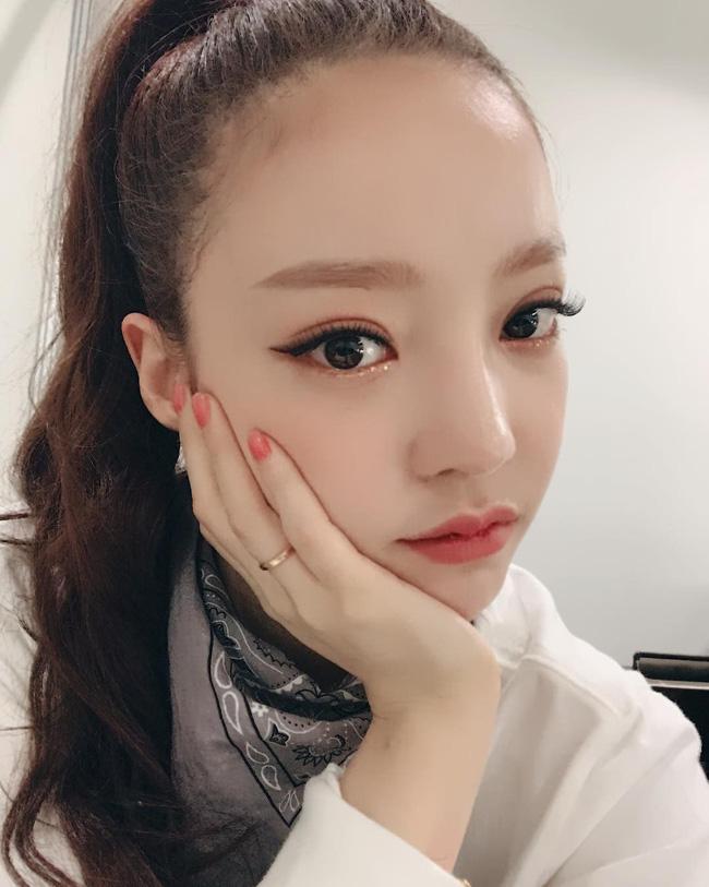 Hiếm lắm mới có nữ idol đình đám Kpop công khai việc dao kéo, lại còn khoe kết quả lên Instagram - Ảnh 5.