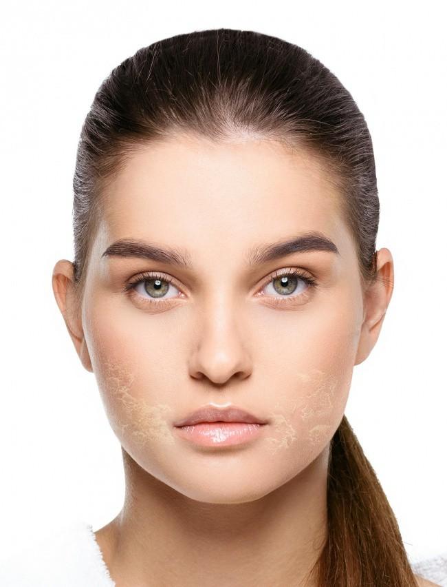4 sản phẩm tự nhiên thường được khuyên để dưỡng da mặt nhưng thực ra lại gây hại không tưởng, chị em phải cẩn thận - Ảnh 1.