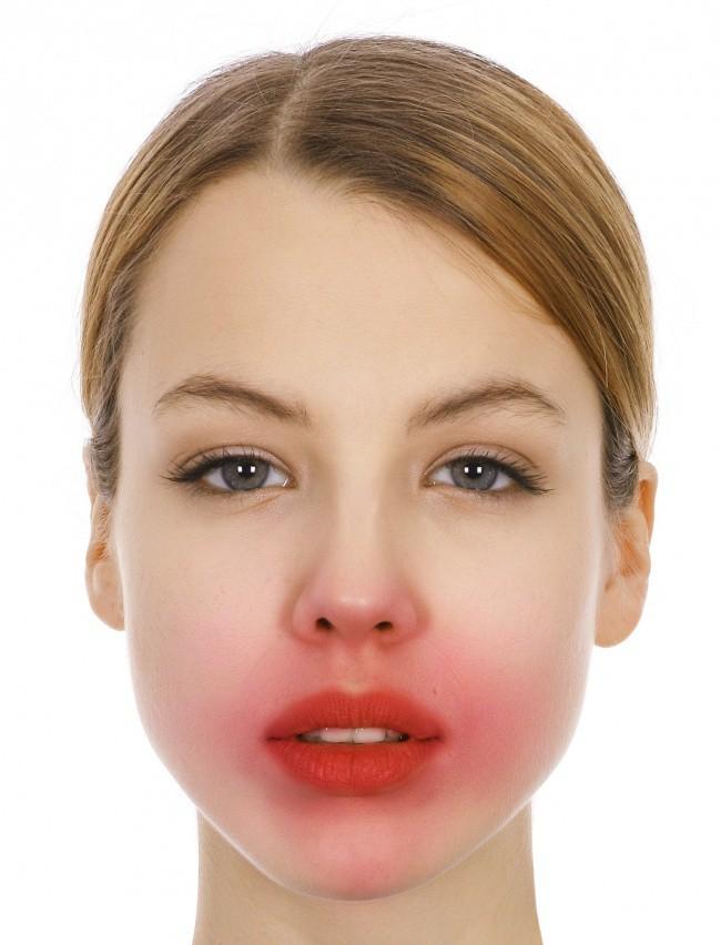 4 sản phẩm tự nhiên thường được khuyên để dưỡng da mặt nhưng thực ra lại gây hại không tưởng, chị em phải cẩn thận - Ảnh 2.