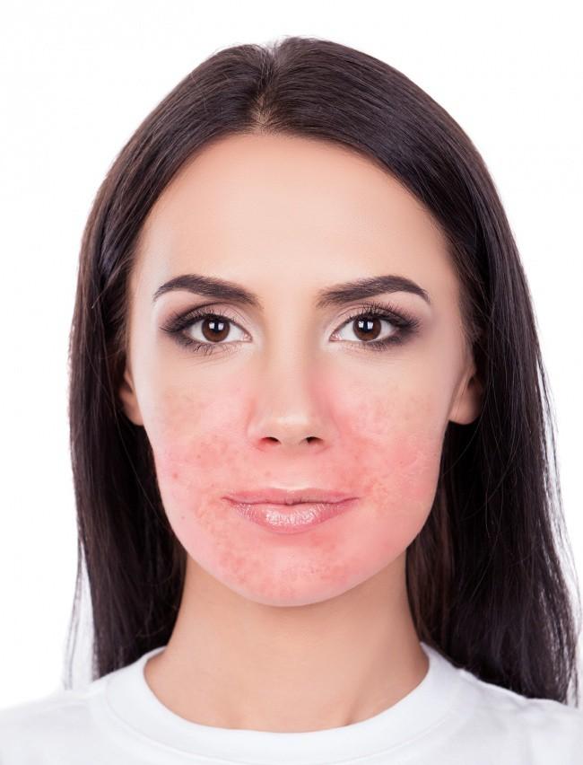 4 sản phẩm tự nhiên thường được khuyên để dưỡng da mặt nhưng thực ra lại gây hại không tưởng, chị em phải cẩn thận - Ảnh 4.