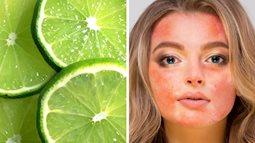 4 sản phẩm tự nhiên thường được khuyên để dưỡng da mặt nhưng thực ra lại gây hại không tưởng, chị em hãy nhớ kỹ