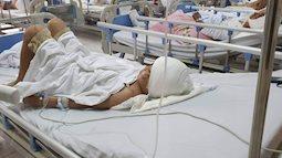 Cứu sống bé trai 12 tuổi bị chó cắn lột da đầu, mất hai tai ở Thanh Hóa