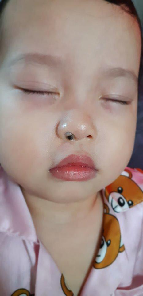 Con ngạt mũi mãi không khỏi, mẹ Sài Gòn kinh hãi khi thấy dị vật này liên tiếp chui ra từ mũi con  - Ảnh 3.