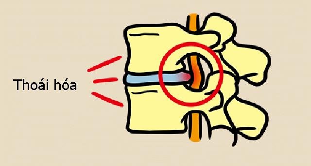 Có những dấu hiệu này nghĩ ngay đến bệnh thoái hóa đốt sống cổ và học cách bác sĩ chia sẻ để có đốt sống cổ khỏe mạnh - Ảnh 8.