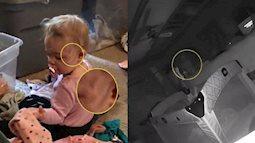 Chuyện kì bí: Phụ huynh kinh hoàng khi phát hiện ra con gái mình bị ma cào qua camera