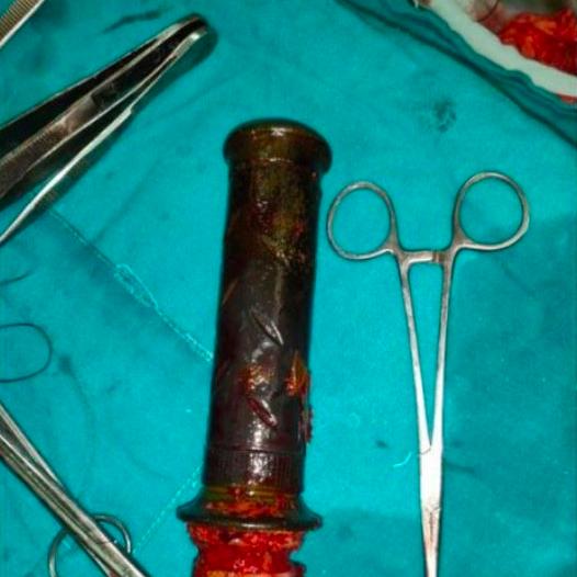 Đi khám vì bị đau bụng, người phụ nữ vô tình tiết lộ hành vi tàn độc của người chồng từ tận 2 năm trước - Ảnh 2.