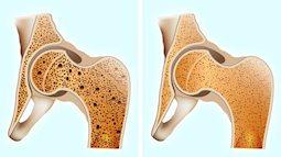 Xương khớp là nền móng trụ cột của cơ thể: Nên ăn 6 thực phẩm giúp xương chắc bền