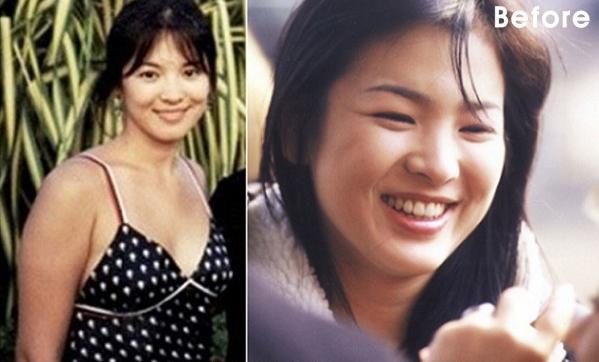 Song Hye Kyo giảm cân ngoạn mục với công thức uống 3 lít nước chanh pha loãng mỗi ngày - Ảnh 1.