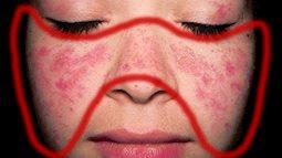 Đã có những sản phụ nguy kịch tính mạng của cả mẹ và con vì bệnh lupus ban đỏ: Nguyên nhân bệnh lupus ban đỏ là gì?