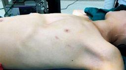 Phẫu thuật ngực lõm cứu bé trai 11 tuổi không dám ra đường vì tự ti với bạn bè
