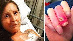 Vì chứng bệnh lạ, cô gái này phải chịu đau đớn cắt đi từng phần ngón tay suốt 6 năm trời
