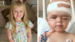 Bé gái 3 tuổi phải làm lại hộp sọ do mắc chứng bệnh về xương hiếm gặp