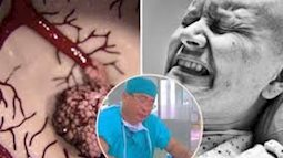 Bác sĩ bệnh viện Ung bướu chỉ ra những quan niệm sai lầm đẩy bệnh nhân ung thư nhanh tới cửa tử, nên ngừng tin ngay lập tức