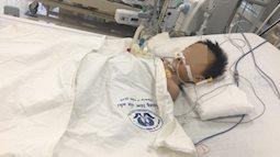 Bé trai 27 tháng tuổi nguy kịch nghi do uống thuốc hạ sốt quá liều