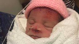 Bác sĩ 'quá tay' khi mổ bắt thai, em bé phải chịu di chứng trên mặt suốt đời