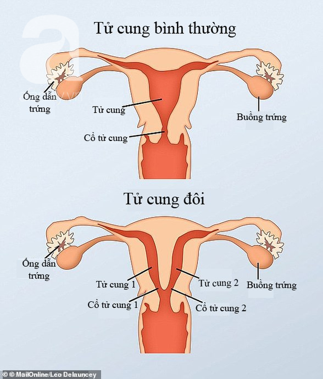 11530044-7369077-When_the_female_foetus_is_developing_two_tubes_normally_join_to_-a-31_1566142551400 copy