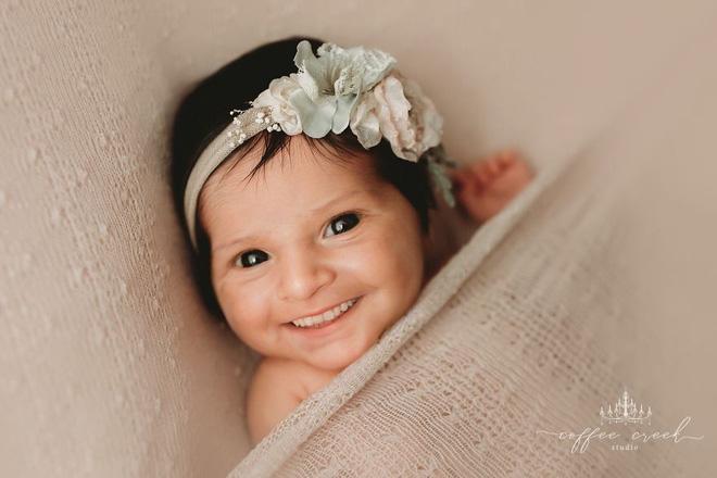 Bộ ảnh chứng minh lí do vì sao trẻ sơ sinh không nên có răng khiến ai xem cũng phải giật mình thon thót - Ảnh 11.