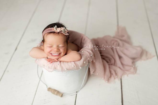 Bộ ảnh chứng minh lí do vì sao trẻ sơ sinh không nên có răng khiến ai xem cũng phải giật mình thon thót - Ảnh 10.
