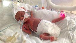 """Sinh ra chỉ nặng 0,5kg, thế nhưng bé gái này vẫn làm nên một """"kỳ tích"""" khác mà chẳng ai có thể ngờ đến"""