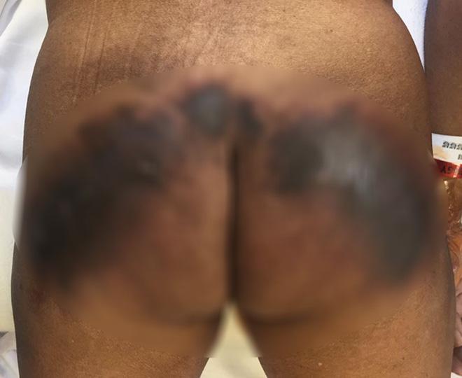 Những ca tiêm filler mông hỏng nghiêm trọng đến mức chỉ nhìn thôi cũng thấy rùng mình - Ảnh 5.