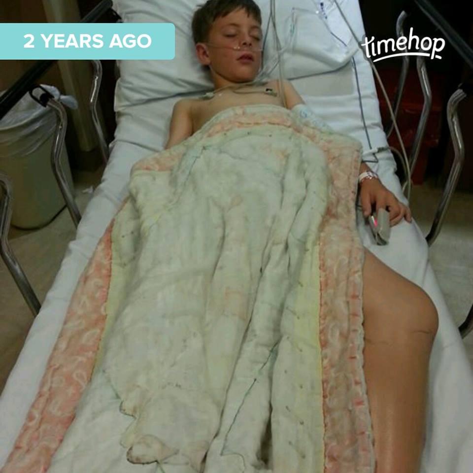 Bé 10 tuổi tử vong vì một vết bầm nhỏ ở chân khi chơi thể thao, nhưng kết quả pháp y khiến ai cũng sốc - Ảnh 3.
