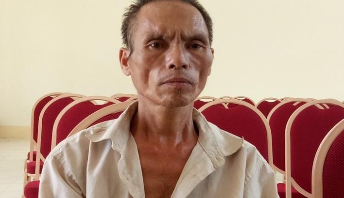 Bé trai bị chú họ dùng dao chém đứt lìa bàn tay: Mắt trái đã bị hỏng hoàn toàn - Ảnh 2.