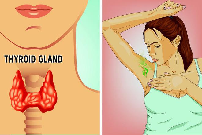 Mùi cơ thể gây ám ảnh nhưng ít ai biết nguyên nhân có thể xuất phát từ những vấn đề sau - Ảnh 3.