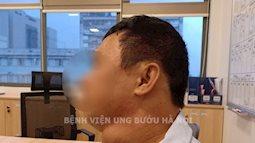 Mặt lệch hẳn sang một bên với khối hạch có kích thước lên đến 7cm của bệnh nhân ung thư tuyến giáp