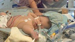 Nín thở nghe mẹ kể chuyện con sinh ra không thở trong 28 phút vì dây rốn quấn chặt quanh cổ