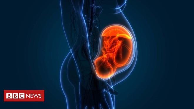 Hạt carbon đen đi xuyên qua nhau thai: Bằng chứng cho thấy ô nhiễm không khí ảnh hưởng trực tiếp tới thai nhi trong bụng mẹ - Ảnh 2.