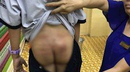 TP.HCM: Nghi án cha ruột bạo hành bé trai 10 tuổi thời gian dài tại chung cư