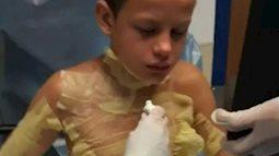 Nghịch dại với bạn, cậu bé suýt bị thiêu cháy sau khi học theo trào lưu trên YouTube