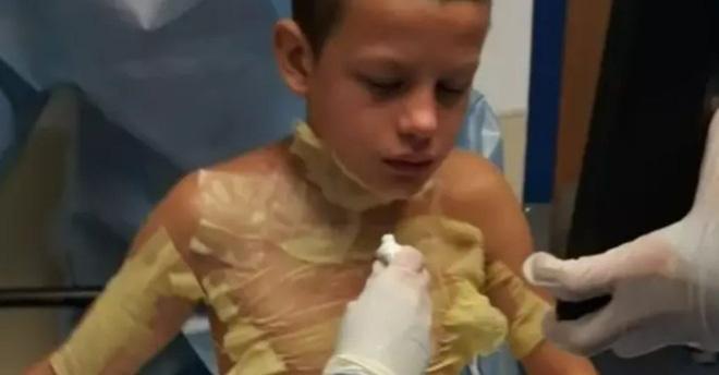 Nghịch dại với bạn, cậu bé suýt bị thiêu cháy sau khi học theo trào lưu trên YouTube - Ảnh 1.