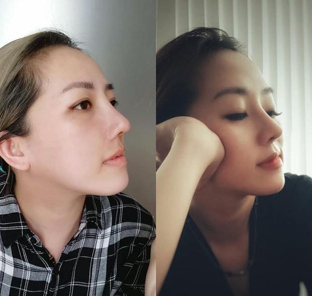 Chi 45 triệu làm mũi, cô nàng khẳng định lại chân lý: 1 chiếc mũi xinh xắn quyết định 80% nét đẹp khuôn mặt! - Ảnh 2.