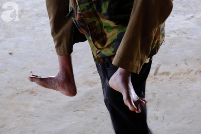Hình ảnh xúc động: Con trai út cõng cha già 77 tuổi bị liệt vượt hàng chục cây số cầu xin giúp đỡ - Ảnh 5.