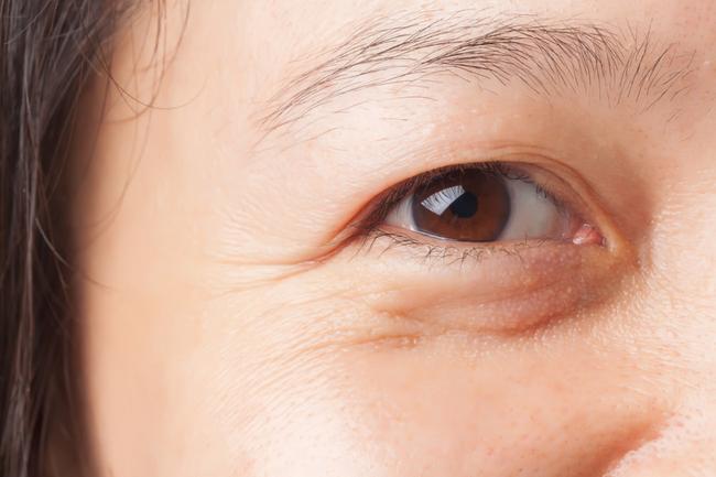 Nghiên cứu mới: Người nghiện xem phim kinh dị da sẽ nhăn nheo và nhanh già gấp 20 lần bình thường - Ảnh 2.