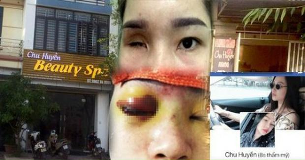 Vụ cô gái bị mù vĩnh viễn sau khi nâng mũi: Cơ sở làm đẹp từng bị yêu cầu dừng hoạt động 2 lần nhưng vẫn làm liều - Ảnh 3.