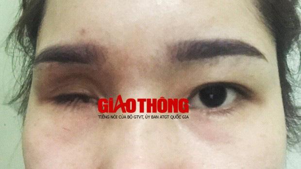 Vụ cô gái bị mù vĩnh viễn sau khi nâng mũi: Cơ sở làm đẹp từng bị yêu cầu dừng hoạt động 2 lần nhưng vẫn làm liều - Ảnh 2.