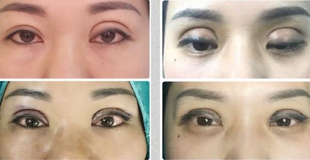 Vô vàn các biến chứng khi cắt mí mắt, nhấn mí thường gặp ở spa khiến chị em nhận trái đắng - Ảnh 1.